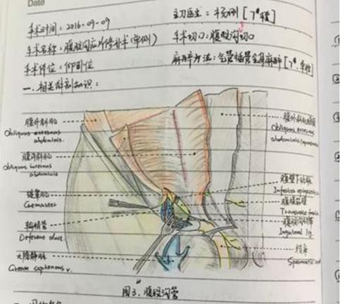 南昌护士手术笔记走红 手绘精致的解剖图火爆